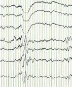 Hirnstromkurve (EEG)