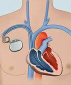 Schrittmacher: Das Gehäuse sitzt unter der Haut, die Elektroden liegen im Herz