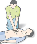 Herz-Lungen-Wiederbelebung: Herzdruckmassage kann den Kreislauf wieder in Gang bringen
