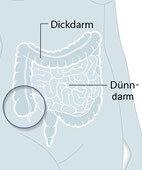 """""""Tatort"""" (Unter-)Bauch rechts: Hier bereitet manchmal ein entzündeter Blinddarm oder die Crohn-Krankheit Schmerzen. Und der Appetit vergeht"""
