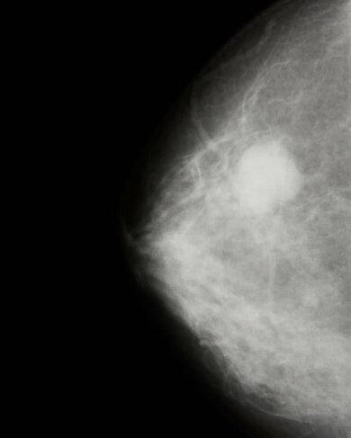 Früherkennung von Brustkrebs: Eine Mammografie mit einem verdächtigen Herd (heller, runder Fleck rechts oben)