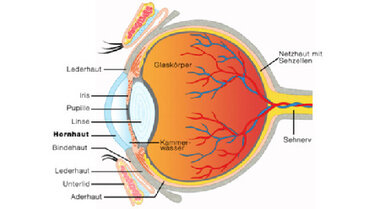 """Schematische Darstellung des Augenaufbaus (hier im Bild eine """"gesunde"""" Hornhaut)"""