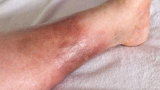 Schmerzhaft: Ein Erysipel (eine Wundrose) entsteht oft am Bein