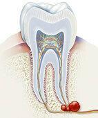"""Kieferzysten bilden sich häufig an den Wurzelspitzen eines Zahns, weshalb diese Art auch """"Zahnwurzelzyste"""" genannt wird"""