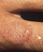 Granuloma anulare am Finger: Die Hautknötchen sind hartnäckig, aber glücklicherweise vollkommen harmlos. Für die Vergrößerung bitte auf die Lupe oben links klicken!