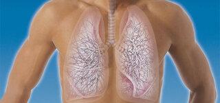 Mann mit Lungenemphysem