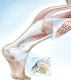 Die Achillessehne verbindet Wadenmuskel und Ferse. Sind die Wadenmuskeln verkürzt, knickt der Fuß leichter um