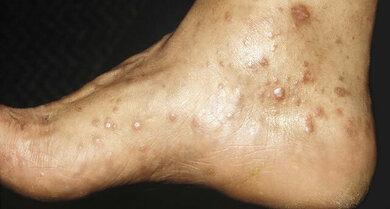 Häufig bilden sich bei Lichen ruber flache Hautknötchen, oft in der Knöchelregion