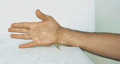 Wichtig bei Rheuma der Hände: Fingerübungen