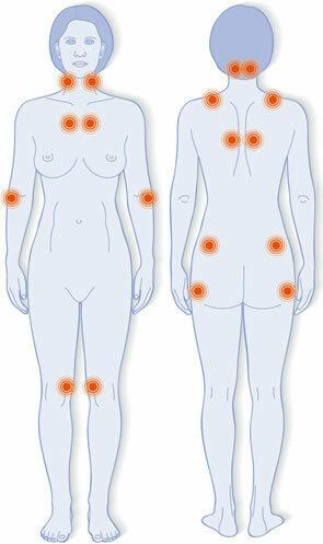 Schmerzpunkte bei Fibromyalgie