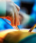 Ein Ganglion kann operativ entfernt werden