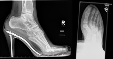 Hohe Absätze im Röntgenbild: Stöckelschuhe bewirken, dass der Vorfuß stark belastet wird. Außerdem zwängen sie die Zehen in eine Hallux-Stellung