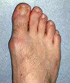Eine Wölbung an der Fußinnenseite weist auf einen beginnenden Hallux valgus hin. Zudem verschiebt sich die große Zehe in Richtung der mittleren Zehen