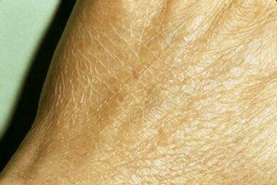 Ichthyose oder Ichthyosis: Weißliche Schuppen am Handrücken