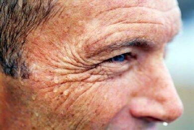 Heftiges Schwitzen entzieht der Haut Flüssigkeit. Sie wird trockener