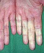 Raynaud-Krankheit mit Durchblutungsstörungen der Finger