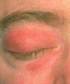Symptome bei Dermatomyositis: Lila Rötungen und Schwellungen der Augenlider