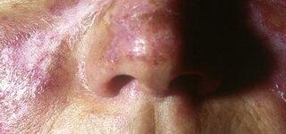 Symptome eines Lupus Erythematodes
