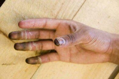 Eine Erfrierung  ab dem dritten Grad äußert sich unter anderem durch blauschwarze Verfärbungen der Haut