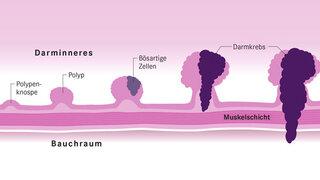 Infografik Darmkrebs