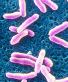 Diphtherie-Erreger unter dem Mikroskop: Das Corynebacterium