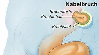 Nabelbruch (Schematische Darstellung)