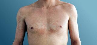 Kleienflechte (Pityriasis Versicolor)