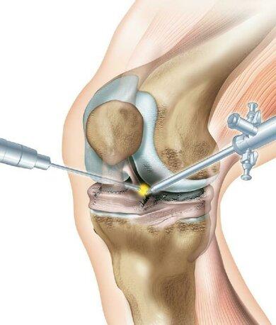 Schlüsselloch-Operation am Knie: die nur milimeter langen Schnitte sitzen links und rechts neben der Sehne, welche von der Kniescheibe zum Schienbein führt