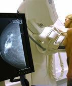 Die digitale Mammografie zeigt das Bild sofort am Monitor an