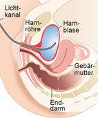 Mit dem Zystoskop betrachtet der Arzt Harnröhre und Blase von innen