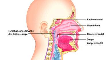 Das lymphatische Gewebe der Seitenstränge befindet sich beidseits im hinteren und seitlichen Rachenbereich. Die ungefähre Lage ist bläulich markiert