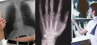 Röntgen Übersicht