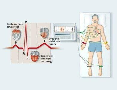 Der Sinus-Rhythmus: die normale Erregungs- und Rückbildungskurve des Herzens