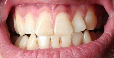 Zahnstein führt zu gelblichen bis bräunlichen Verfärbungen auf der Zahnoberfläche