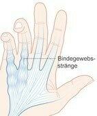 Beim Morbus Dupuytren kommt es zu einer Vermehrung des Bindegewebes an der Handfläche