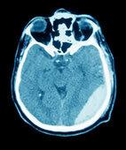 In diesem Computertomogramm des Schädels lässt sich rechts ein Epiduralhämatom erkennen (heller Bereich)