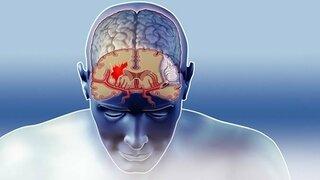 Gehirn Blutgefäße (Schematische Darstellung)