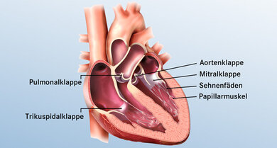 Die Mitralklappe sitzt zwischen linkem Vorhof und linker Herzkammer