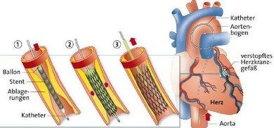 Schematische Darstellung der Implantation eines Stents in ein Herzkranzgefäß: 1) Vorschieben des Katheters 2) Entfaltung von Ballon und Katheter 3) Zurückziehen des Katheters