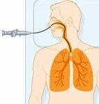 Lungenendoskopie
