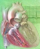 Bei der EPU messen mehrere Sonden die elektrische Erregung des Herzmuskels