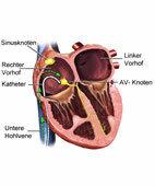 Einführen des Katheters in den rechten Vorhof. Das Reizleitungssystem des Herzens ist gelb eingezeichnet