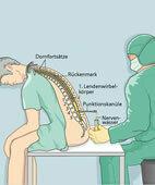 Eine häufige Punktion in der Nervenheilkunde ist die Lumbalpunktion