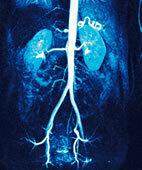 Angiografie der Bauchschlagader, der Nierenarterien und der Beckenarterien