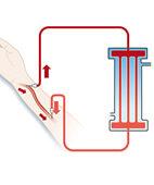 """Bei der Hämodialyse erfolgt die """"Blutwäsche"""" außerhalb des Körpers"""