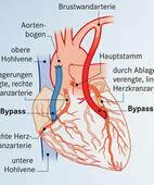 Für einen Bypass kann zum Beispiel eine Vene (blau) oder die Brustwandarterie (rot) verwendet werden