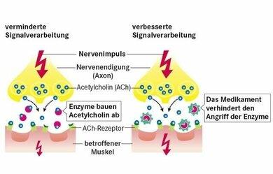 Bei Myasthenie hakt die Signalübertragung am Muskel (links). Medikamente blockieren den Abbau des Signalstoff ACh. Seine Konzentration erhöht sich, die Signalübertragung verbessert sich (rechts im Bild, mehr dazu im Abschnitt Therapie)