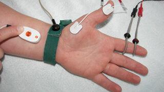 Elektroneurografie: Elektroden an der Haut