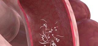 Würmer im Darm (Schematische Darstellung)
