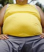 Nur bei krankhaftem Übergewicht ist eine Magenverkleinerung angebracht